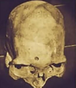 Otra posición del cráneo.